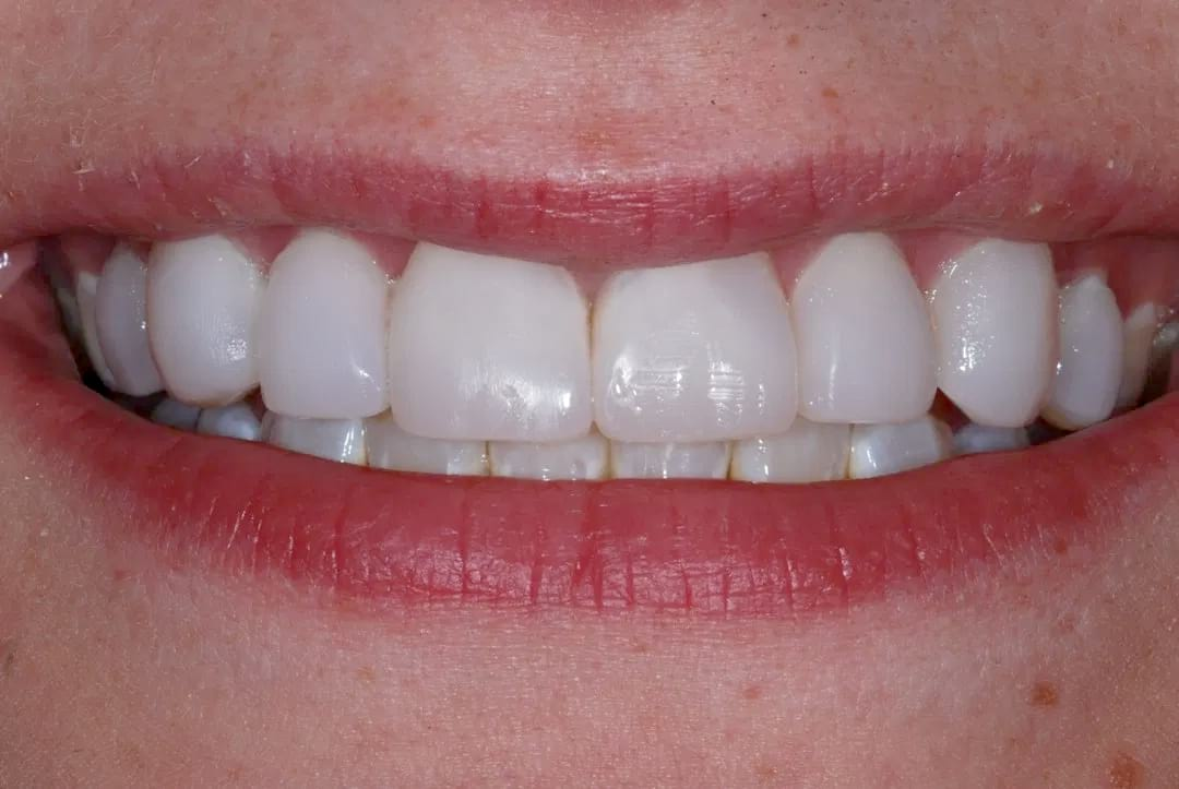 Composite veneers for natural looking teeth