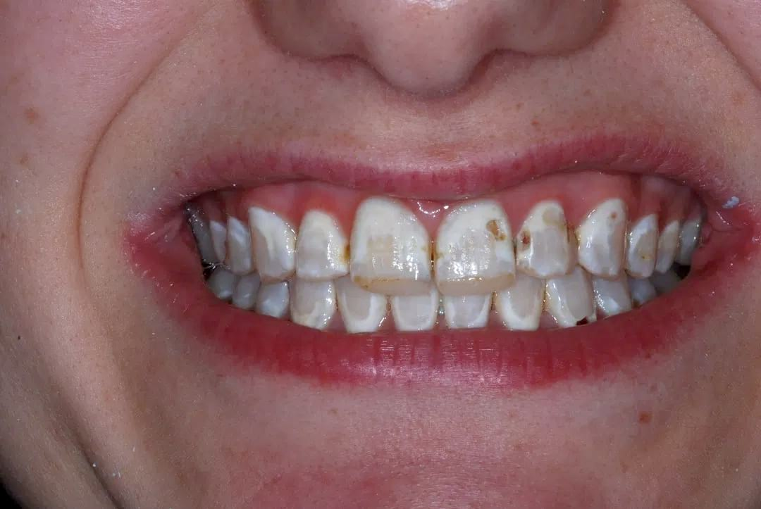 Veneers are a simple and effective treatment for an attractive smile.